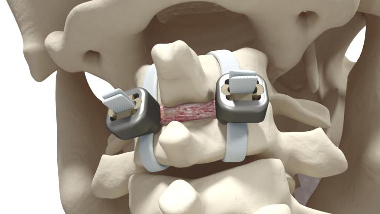 Spinal Stabilization Surgery >> Jazz™ Lock - Implanet